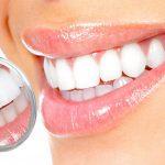 Особенности профессиональной очистки зубов и некоторые типы протезирования