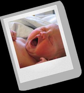 Обыкновенно группу здоровья 2А определяют у новорожденного по следующим признакам: