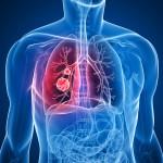 Рак легких - еще не приговор