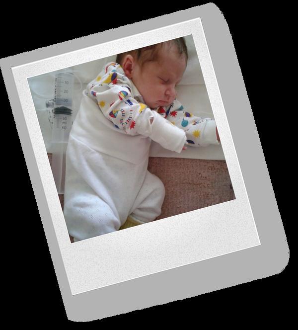 Как применяют зонд для кормления новорожденных