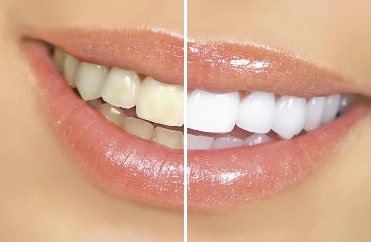 Лазерное отбеливание зубов – технологии 21 века